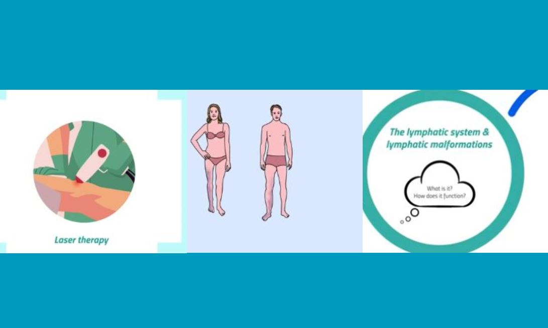 Three New Pills of Knowledge videos on Lymphatic Malformations and Klippel-Trenaunay syndrome now available!