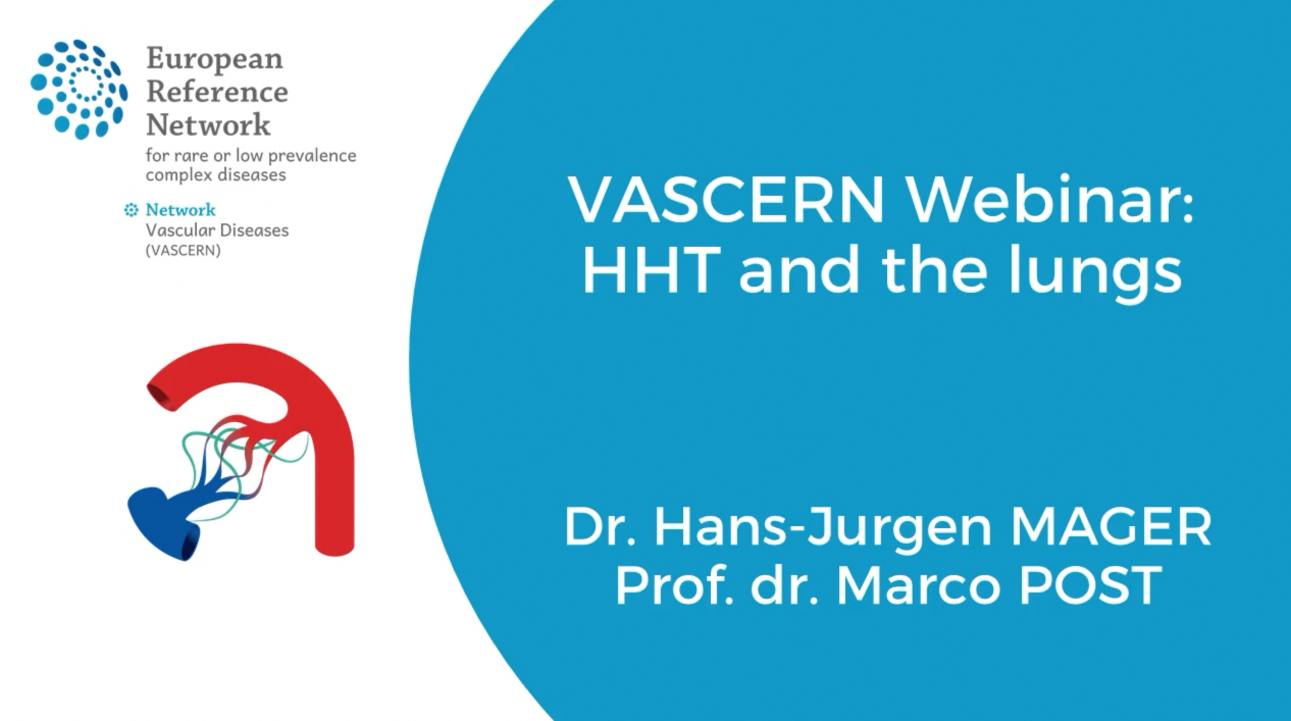 Recording of the VASCERN webinar: HHT and the lungs now available!